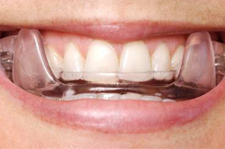 A person wearing a sleep apnea oral appliance